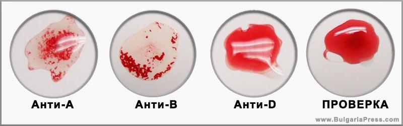 Тест за кръвта група